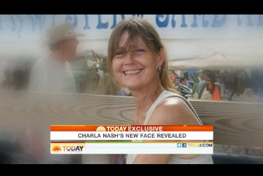 "74c5d715e7a nash.png Woman Whose Grill And Hands Were Ripped Off By ""Travis The Chimp"" Reveals New Face [Video]"